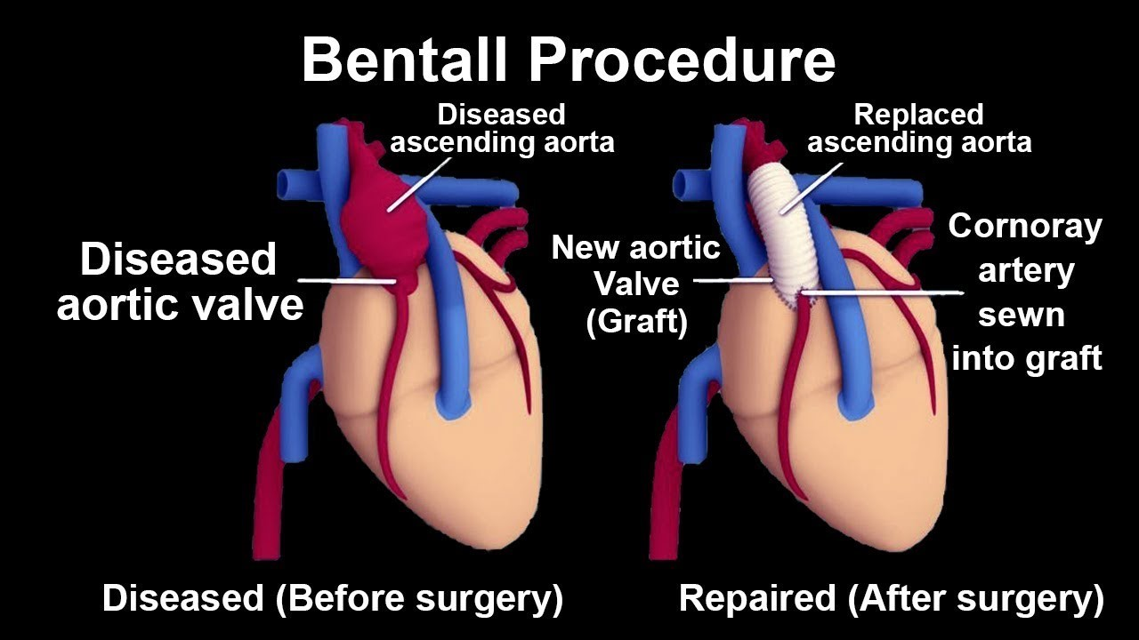 before bentall procedure and after bentall procedure
